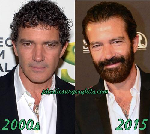 Antonio Banderas Plastic Surgery Fact or Rumor