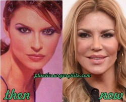 Brandi Glanville Plastic Siurgery Before and After