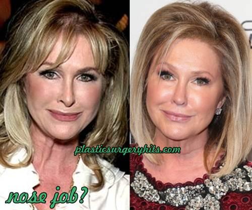 Kathy Hilton Nose Job