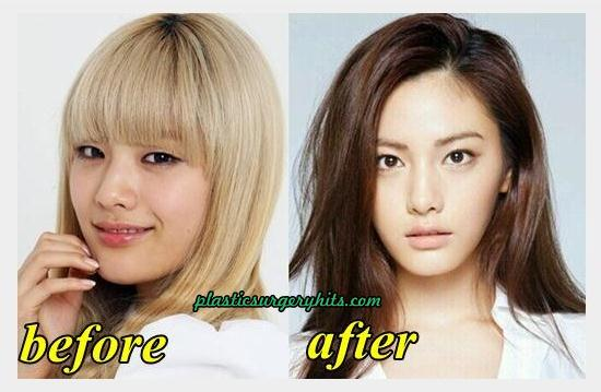 After School Nana Plastic Surgery