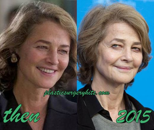 Charlotte Rampling Plastic Surgery Before and After