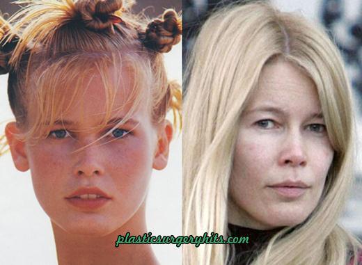 Claudia Schiffer Plastic Surgery fact or Rumor