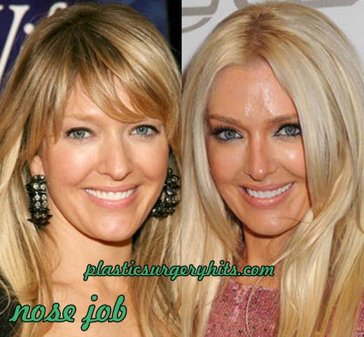 Erika Jayne Nose Job
