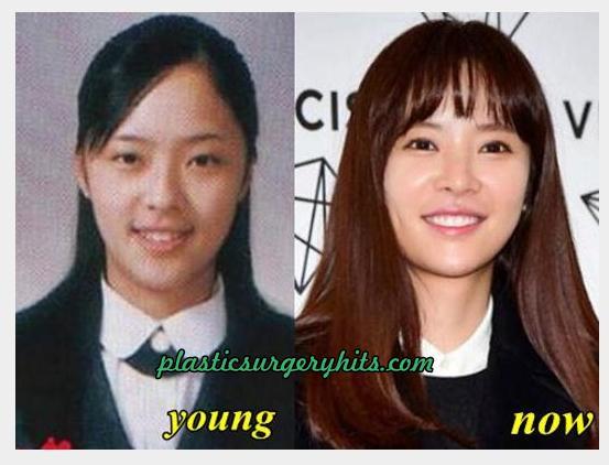 Hwang Jung Eum Plastic Surgery