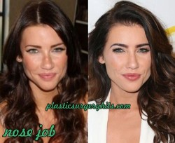 Jacqueline Macinnes Wood Plastic Surgery Through Nose Job