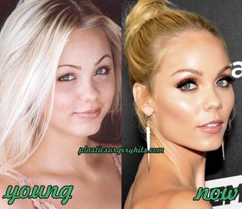 Laura Vandervoort plastic surgery speculation