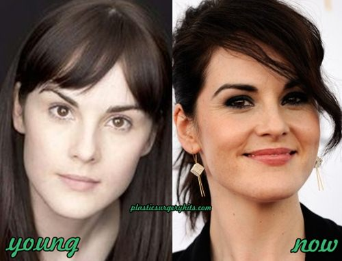 Michelle Dockery Plastic Surgery fact or Rumor