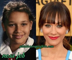 Rashida Plastic Surgery Nose job