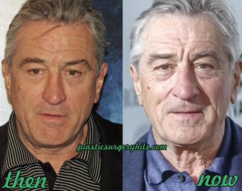 Robert De Niro Plastic Surgery Rumor