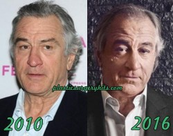 Robert De Niro Plastic Surgery Speculation