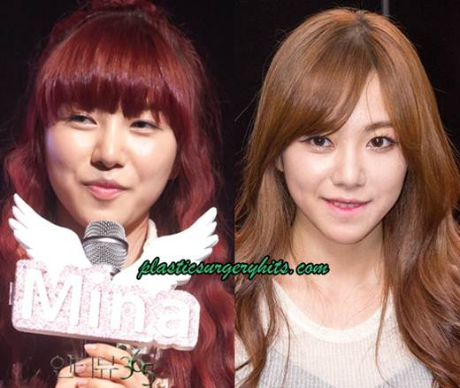 AOA Kwon Mina Plastic Surgery Fact or Rumor