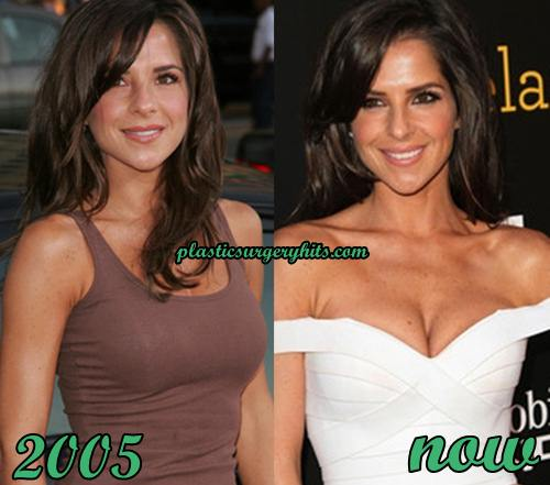 Kelly Monaco Breast Implants
