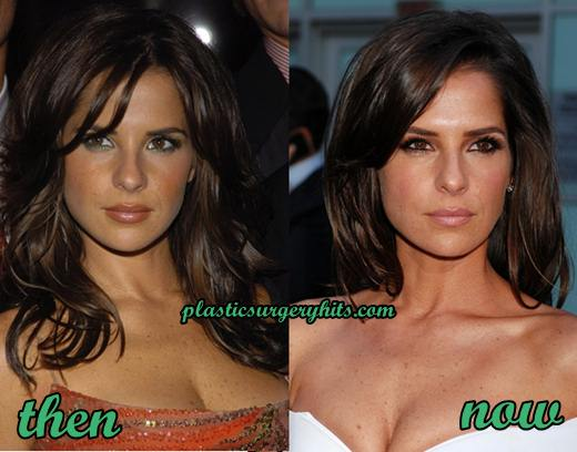 Kelly Monaco Plastic Surgery Fact or Rumor