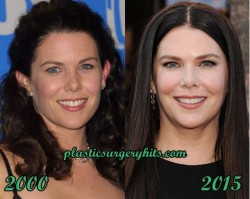 Lauren Graham Plastic Surgery Before and After