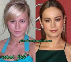 Brie Larson plastic surgery through nose job