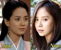 Song Ji Hyo Plastic Surgery Untrue
