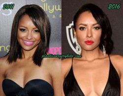 Kat Graham Boob Job Speculation