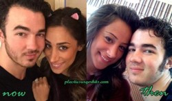 danielle jonas plastic surgery through nose job