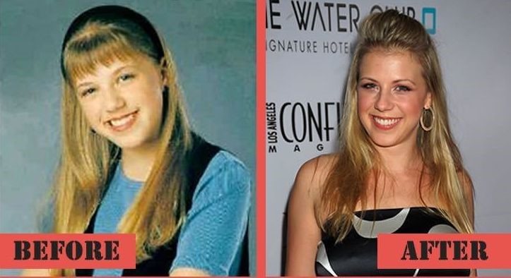 jodie-sweetin-before-and-after-plastic-surgery-30