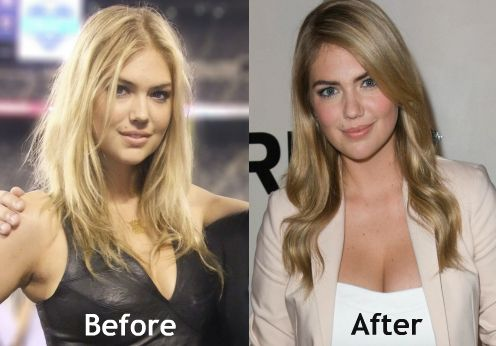 kate-upton-breast-implants